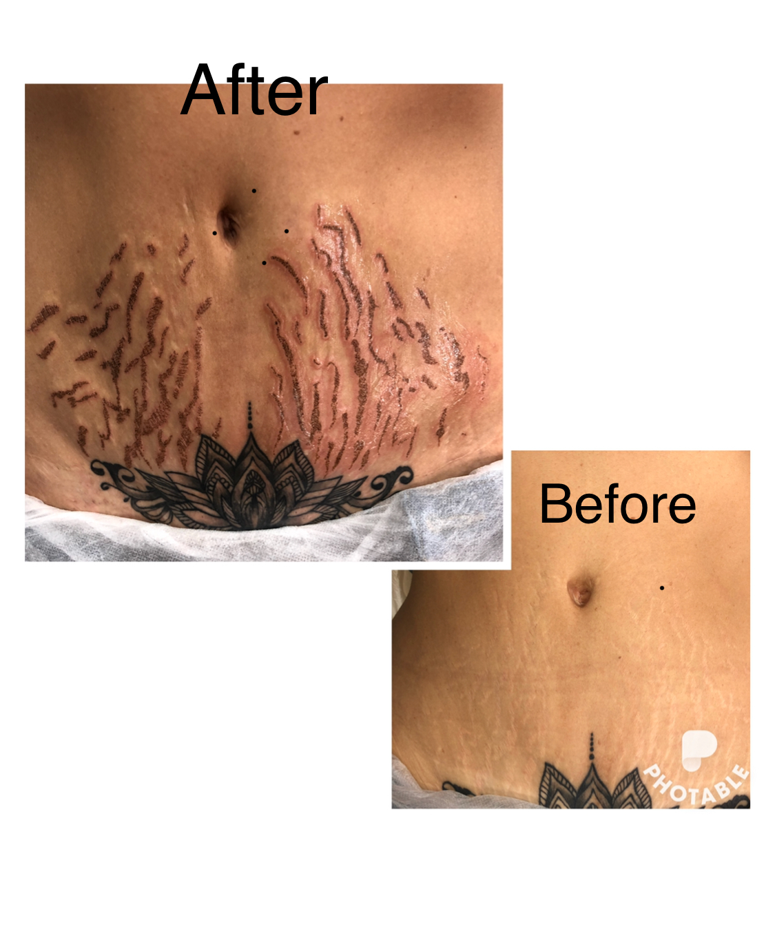 Plasma Pen Fibroblasth Training Beauty Ink Miami