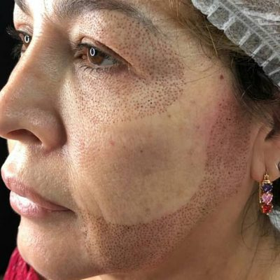 lifting facial con Plasma Pen Fibroblast en Miami Florida