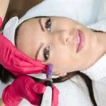 microneedling training