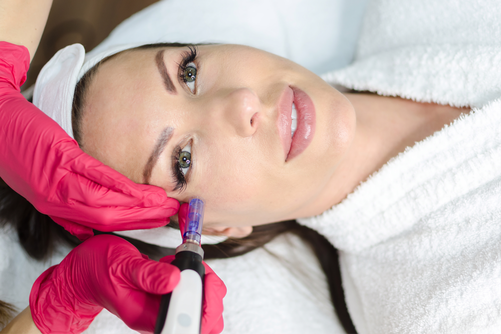 Microneedling training in Miami Florida